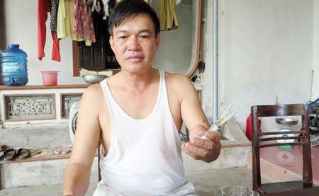 Pho Chu tich HDND xa bi tan cong tai nha rieng - Anh 1