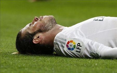 Real nghi ngo Bale chan thuong do... co - Anh 1
