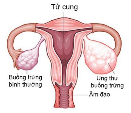 Ung thu buong trung khong qua dang so? - Anh 1