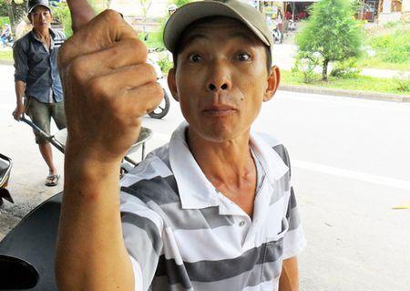 Nguoi danh anh xe om chong tieu cuc o Phu Quoc linh an - Anh 1