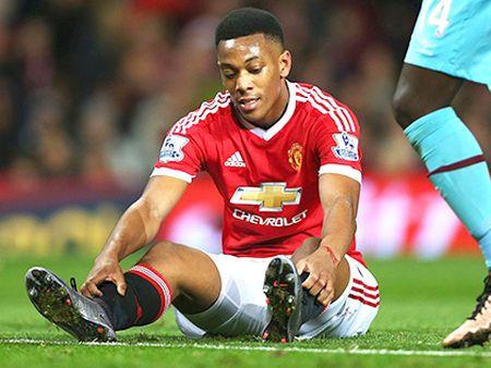 Man United dung voi mo tuong ve 'The he 2016' cua Rashford - Anh 3