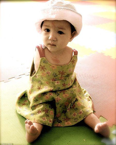 Cuoc song moi day du cua em be khong tay xinh dep tung bi bo roi - Anh 1