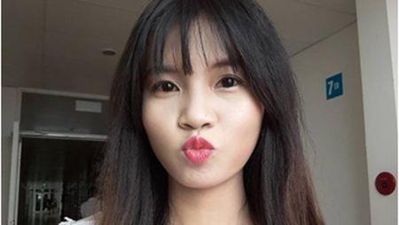 Nu cu nhan bien dang toan than vi bong xang: Nguoi cha va hanh trinh cuu con - Anh 1