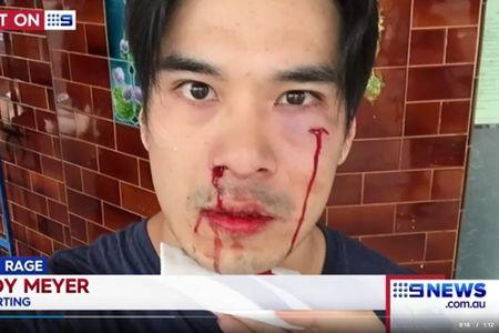 Dien vien Thien Nguyen bi danh tren duong pho Australia - Anh 4