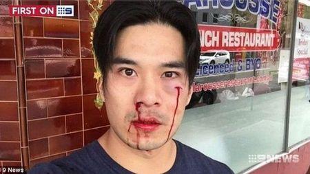 Dien vien Thien Nguyen bat ngo bi danh chay mau mui, me rang o Sydney - Anh 1