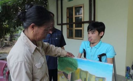 Chang hoa si khuyet tat 15 nam ve tuong lai tu nhung con dau - Anh 9