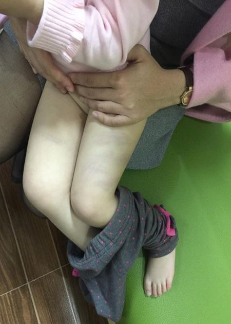 Dinh chi cong tac co giao dung dua danh bam tim dui hoc sinh - Anh 1
