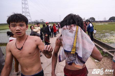 Trai lang do mau, kiet suc trong cuop phet Hien Quan 2017 - Anh 13