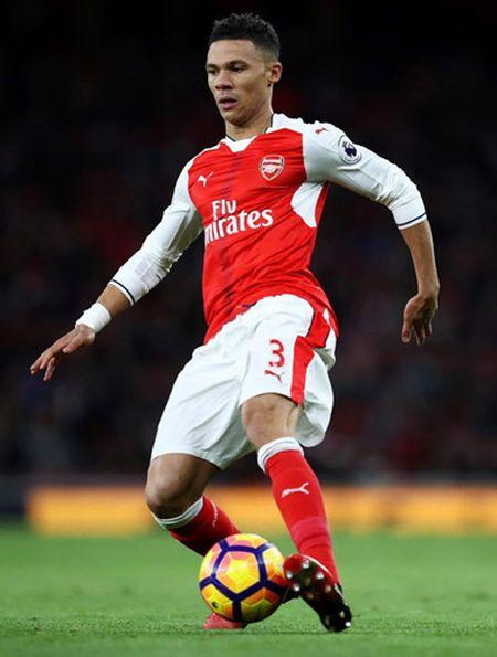 Doi hinh du kien giup Arsenal 'xa gian' truoc Lincoln City o FA Cup - Anh 6