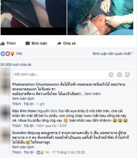 """Be gai mim moi quyet khong khoc du bac si khau song khien trieu nguoi """"thuong oi la thuong"""" - Anh 3"""