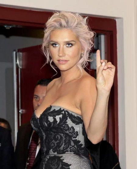Nhin chang duong nay de thay fan US-UK can ung ho Kesha that nhieu, nhieu hon nua! - Anh 14
