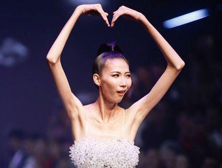 'Sieu mau gay' cua Viet Nam con 'xuong' hon 10 nguoi mau gay nhat the gioi - Anh 13