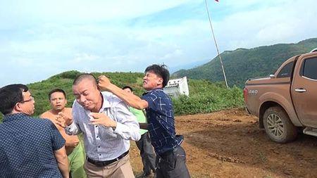 Vu phong vien Bao Cong ly bi hanh hung tai Hoa Binh: Su that da bi bop meo nhu the nao? - Anh 3