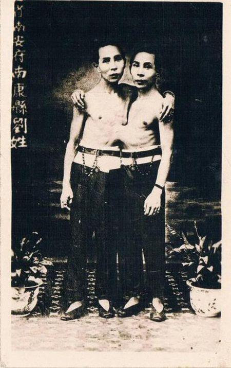 Chuyen ky quai ve cap song sinh dinh lien van lay vo, sinh 21 nguoi con - Anh 3