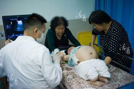Bat chap tinh mang de sinh con, ba me khuyet tat lay di nuoc mat nghin nguoi - Anh 7