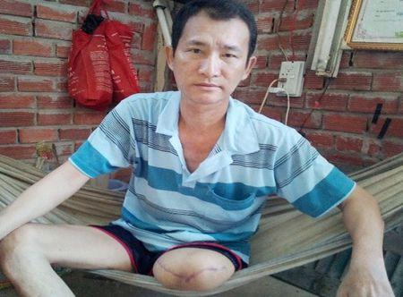 Bac Lieu: Lam ro vu benh nhan bi bong phai cat chan - Anh 2