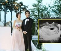 Cuộc sống khác biệt của 3 sao nam hết thời của màn ảnh Hàn
