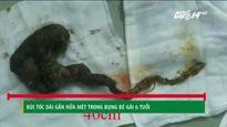 TP.HCM: Phẫu thuật lấy búi tóc dài gần nửa mét trong bụng bé gái 6 tuổi