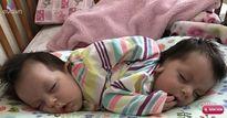 Siêu âm biết song thai dính liền khó sống sót, người mẹ vẫn cãi lời bác sỹ để sinh con