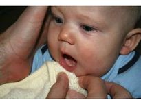 Cách phòng và điều trị bệnh tưa miệng ở trẻ