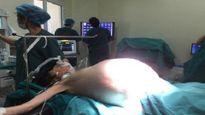 Cô gái trẻ mang khối u buồng trứng khổng lồ, nặng 16kg