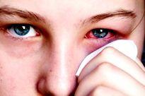 Cách trị viêm kết mạc họng hạch