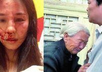 Đêm tân hôn con gái về nhà với khuôn mặt đầy máu vì bị nhà chồng đánh
