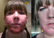 Đi lột da mặt, người phụ nữ nhận cái kết thảm thương không ngờ...