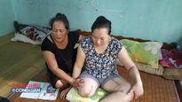 BV Đa khoa tỉnh Điện Biên: Cần làm rõ vụ 'cưa chân' bất thường