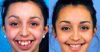 Loạt ảnh trước - sau của sao Việt cho thấy sức mạnh ghê gớm của việc chỉnh răng