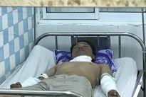 Nổ lớn tại nhà máy gạch Đồng Tâm, 4 công nhân bỏng nặng