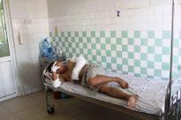 Nổ nhà máy gạch tại Quảng Nam, bốn công nhân bị bỏng nặng