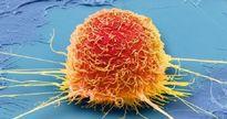 3 cách chữa ung thư dân gian bác sĩ đánh giá là sai lầm