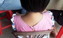 Nghệ An: Nghi vấn bé gái thiểu năng trí tuệ bị hiếp dâm, kẻ đồi bại vẫn ung dung