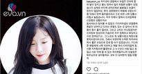 """Bị đập đầu vào máy quay, Taeyeon SNSD: """"Tôi đã khóc. Vòng 3, ngực tôi bị động chạm"""""""