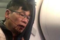 United Airlines 'trắng án' vụ hành khách gốc Việt bị đấm chảy máu mồm