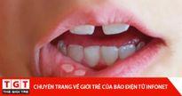Bài thuốc dân gian chữa trị nhiệt miệng đơn giản, hữu hiệu