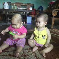 Xót xa cô gái 27 tuổi mang thân hình đứa trẻ chưa đầy năm