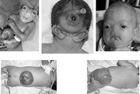 Thuốc lá nhập lậu đầy chất độc cấm gây dị tật và tử vong thai nhi