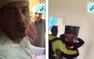 Hình ảnh hoàng tử Saudi bị bắt vì bạo hành người dân