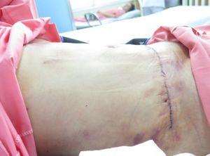 Coi chừng mất mạng khi hút mỡ, cắt da thừa vùng bụng