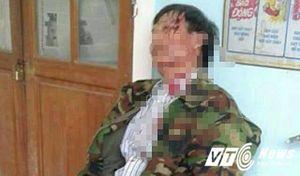 Trưởng công an xã mất chức vì đánh dân tóe máu đầu