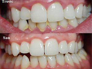 2 cách làm trắng răng đơn giản tại nhà không cần đi nha sĩ