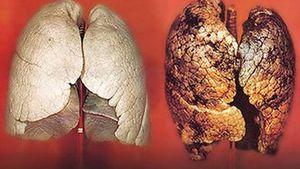 Điểm danh những loại thực phẩm chứa asen có thể gây ung thư phổi