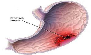 Thực phẩm gây ung thư dạ dày cao lại được nhiều người mê đắm