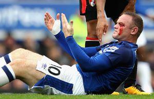 Rooney chảy máu mắt đầm đìa sau pha thúc cùi chỏ của đối thủ