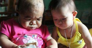 Cô gái 9X mang hình hài đứa trẻ lên 2, nuôi hơn 20 năm vẫn không thể lớn