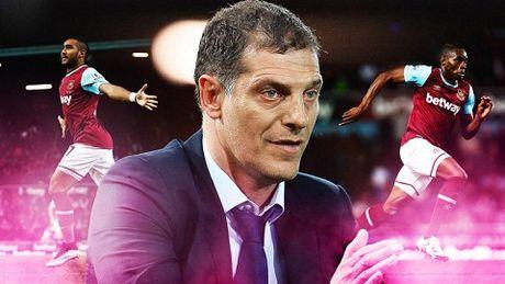 Truoc tran Man City vs West Ham: Khong the chu quan - Anh 2