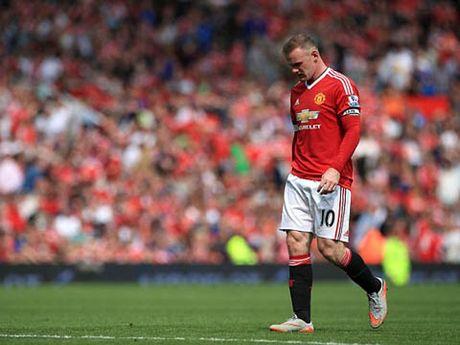 Van Gaal: 'Luke Shaw se ve Manchester phau thuat 1 lan nua. Cau ay manh me, khien toi kinh ngac' - Anh 1