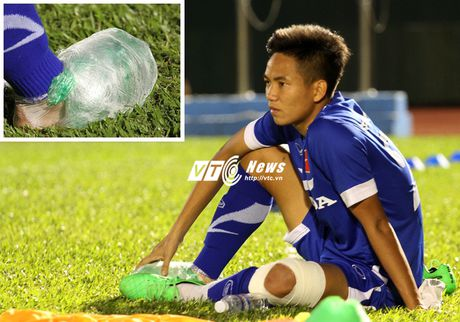 U23 Viet Nam luyen tap cang thang, tiep tuc thanh 'benh vien' - Anh 1